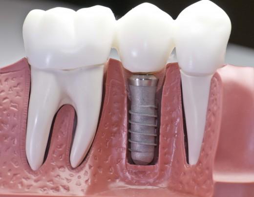 Имплантация зубов vs протезирование