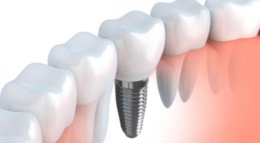 Зубная имплантация: полноценная замена утраченных зубов