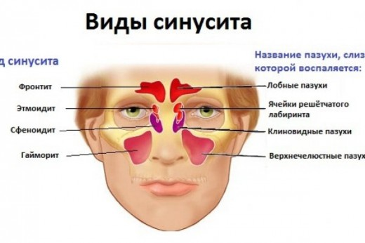 Как определить фронтит и вылечить заболевание