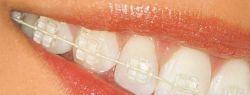 Как стоматологи исправляют прикус