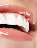Какие современные методики позволяют безопасно отбелить зубы