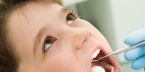 Как происходит лечение молочных зубов