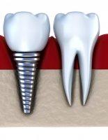Имплантация стала уже хорошо отработанной технологией восстановления зубов