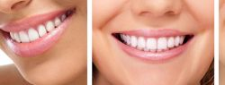 В Москве увеличилось количество желающих выполнить имплантацию зубов